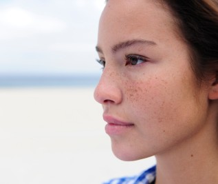 How to Take Care of Freckles and Dark Spots?