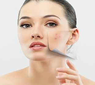 Dealing with Acne during Pregnancy