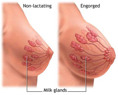 pregnancy-breasts