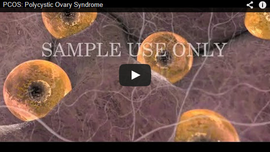 3D medical animation describing PCOS
